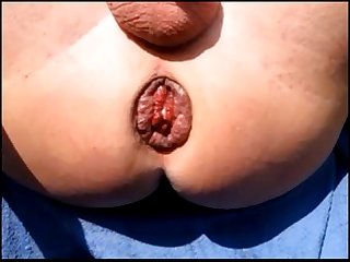 Close up anal ass anus dilation prolapse